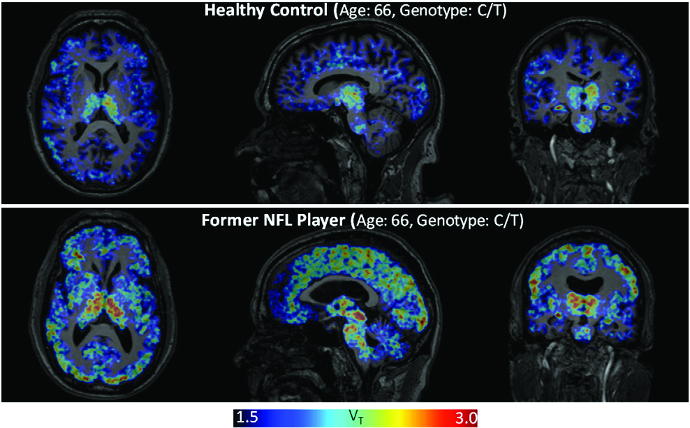 An NFL Player's Brain Compared To An Average Person (FIU Foundation)